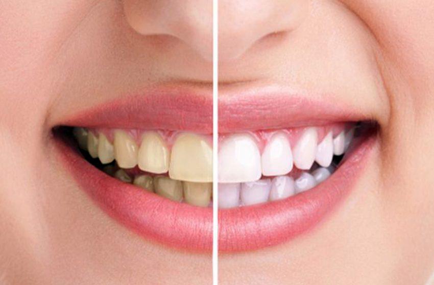 3 Cara Sederhana untuk Memutihkan Gigi Kuning